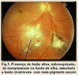 Fig. 2. Fundo do olho com lesão cicatricial da toxoplasmose