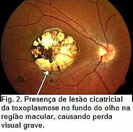 Fig.1. Presença de lesão ativa, esbranquiçada, de toxoplasmose no fundo de olho, associada a lesão cicatrizada com mais pigmento escuro