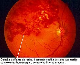 ig. 1. Fundo de olho de oclusão de ramo da veia da retina