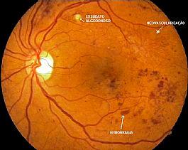 Fig. 1. Retinografia do olho esquerdo mostrando alterações microvasculares da retinopatia diabética.
